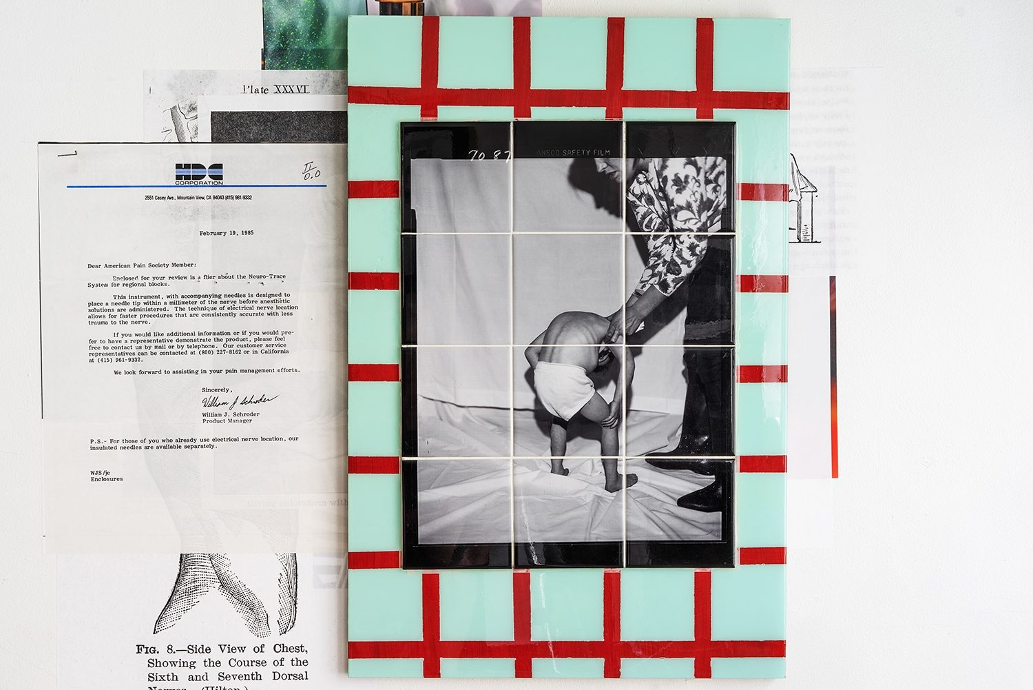 Clinical Photograph Illustrating Spinal Curvature, 1987*, reproduced 2019, dye sublimation print on ceramic tiles, grout, resin
