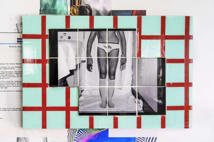 Love in the Scoliosis Clinic, 1971*, reproduced 2019, dye sublimation print on ceramic tiles, grout, resin